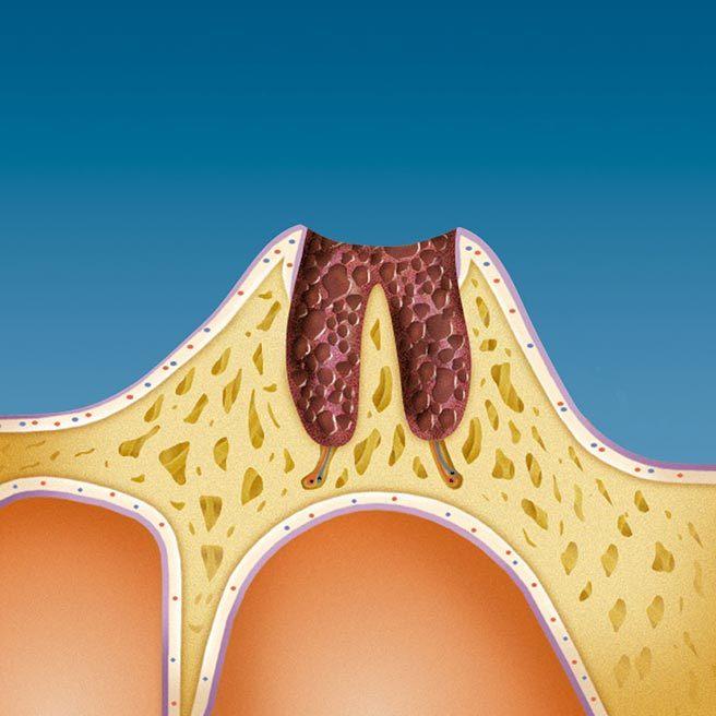 Následkem ztráty zubu je hluboká rána v čelisti | Protefix