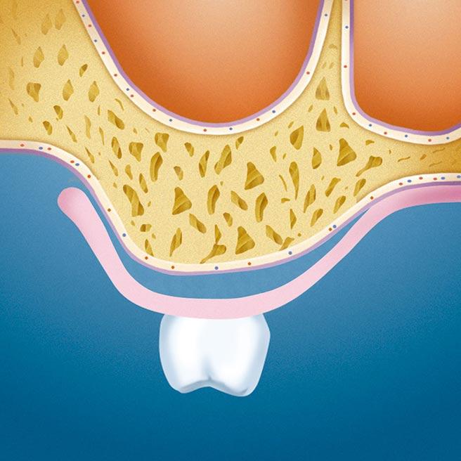 Dutiny pod čelistním výběžkem a dočasnou zubní náhradou | Protefix